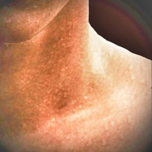 Sweaty Skin After Sauna